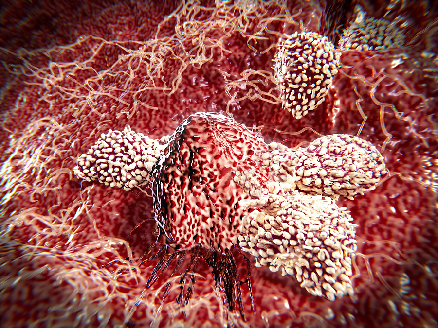 Cancer Immunotherapy and T-cells